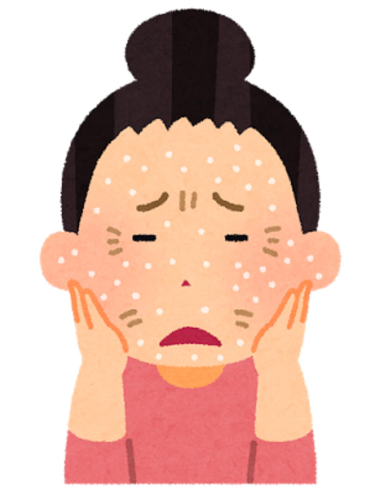 クロタミトンとアレルギー性接触皮膚炎について